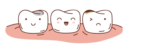 fillings.png
